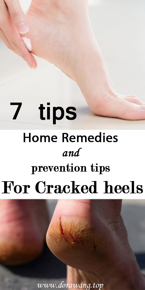 7 Home Remedies For Cracked heels and prevention tips